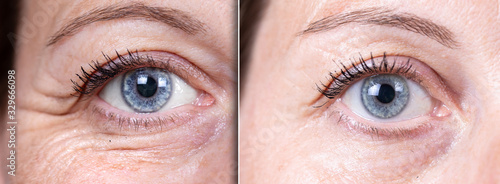 Obraz Before and after beauty care comparison. Wrinkles removing. Closeup view of aged caucasian women eyes. .. - fototapety do salonu