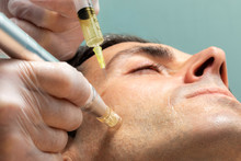 Middle Aged Man Having Micro Needling Treatment On Cheek.