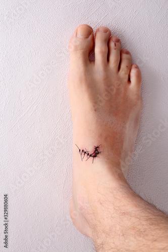 Fototapeta Zaszyta rana na stopie