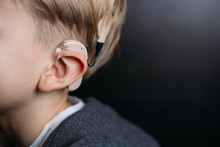 Cochlear Implant On The Boy's Head. Hearing Aid. Copy Space
