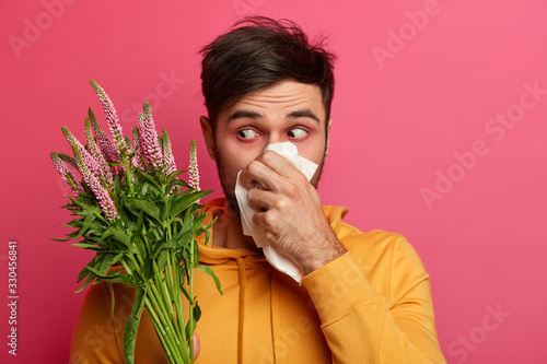 Frustrated man blows nose in tissue, has redness around eyes, symptoms of allergy, has unhealthy look, concentrated at blooming flower, suffers from rhinitis, allergic reaction Canvas Print