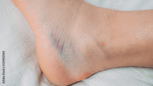 Photo Woman is applying gel on her leg with sprained ankle isolated on white background