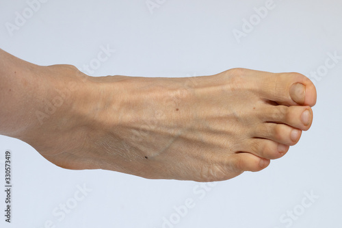 Closeup of deformed toes on caucasian female foot isolated on white background Tapéta, Fotótapéta