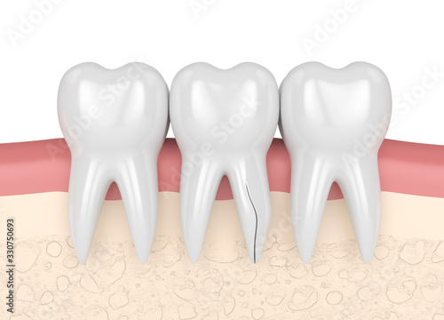 3d render of gum with cracked tooth root #330750693