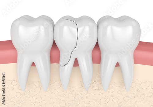 3d render of gums with cracked tooth #330751644
