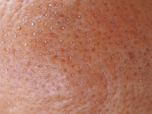 Pimple On The Chin In Woman Ca...