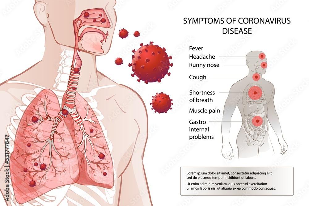 Fototapeta Human MERS-Cov symptoms risk factors. Virus outbreak spread pandemic.