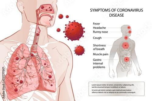Obraz Human MERS-Cov symptoms risk factors. Virus outbreak spread pandemic. - fototapety do salonu
