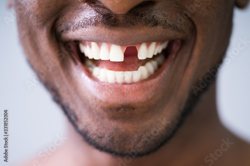 Foto Photo Of Young Man With Missing Tooth