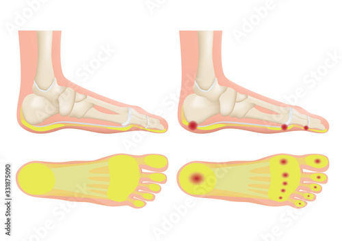normal foot and a foot with a fat pad atrophy / callus Wallpaper Mural