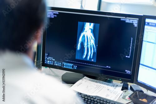 Foto Radiographie de la main médecin radiologue diagnostic examen imagerie médicale