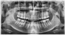 치아 치과 엑스레이 사...