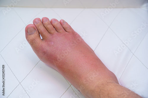 Close up old man right foot, Ankle wounded waiting and swelling infectious disease by bee sting allergic reactions nurse treatment on wound dressing a bloody and brine of patient on white background Canvas Print
