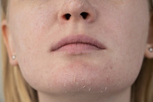 A Woman Examines Dry Skin On H...