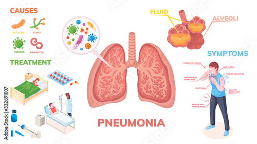 Pneumonia lungs disease vector infographics on symptoms, cause and medical treatment Canvas Print