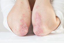 Acute Psoriasis On The Elbows ...