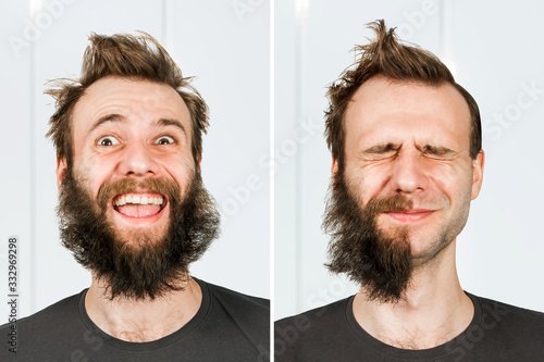 Fotomural happy guy with half beard and without hair loss