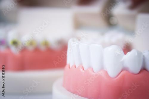 Photo Model denture with metal orthodontics