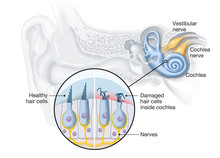 Tinnitus, Healthy And Damaged ...