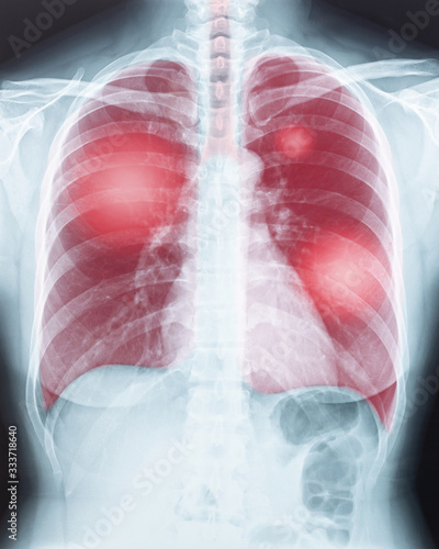COVID-19, Coronavirus disease or tuberculosis infection on lung chest X-ray radi Canvas Print