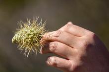 Man With Teddy Bear Cholla Cactus Stuck In Hand
