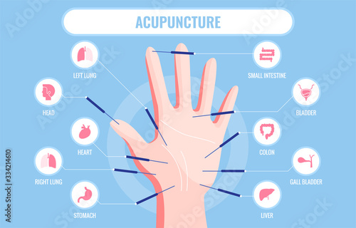 Vector illustration of traditional Chinese acupuncture medicine Canvas Print