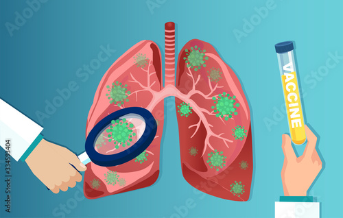 Fotografie, Obraz Vector of a doctor with magnifying glass analyzing coronavirus affected lungs an