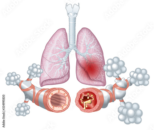 Fotografija Asthma, normal and asthmatic airways, medically illustration