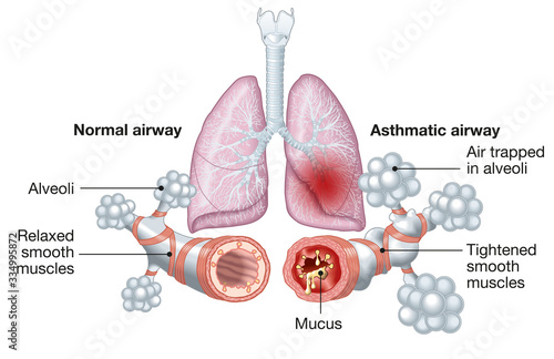Photo Asthma, normal and asthmatic airways, medically illustration