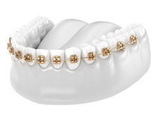 Healthy Teeth With Gold Braces, White Teeth Concept, Dental 3D Illustration