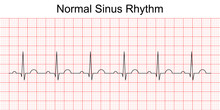 Electrocardiogram Show Normal Heart Beat Line (Sinus Rhythm). ECG. EKG. Vital Sign. Medical Healthcare Symbol.