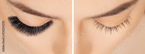 Canvas Print Eyelash extension procedure before after