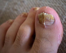 Close Up Of A Male Toe With A ...