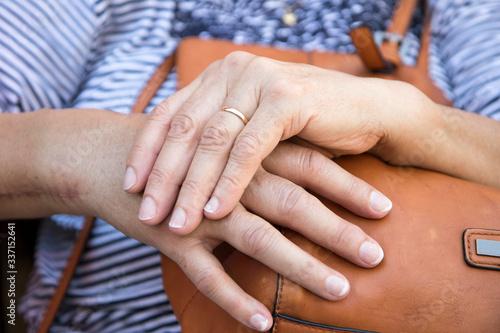 Acercamiento a manos de Adulta Mayor, con cicatriz en su mano derecha Canvas Print
