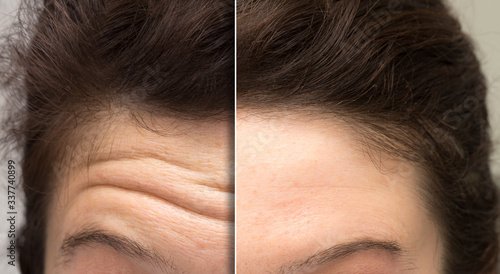 Obraz face of a woman before and after a botox treatment to smooth expression lines. Concept of anti-aging and rejuvenation cosmetics on forehead wrinkles - fototapety do salonu