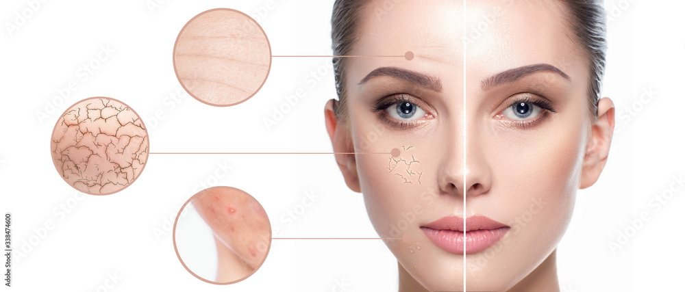 Fototapeta Female face close-up, showing skin problems. Dry skin, acne, wrinkles and other imperfections. Rejuvenation, hydration and skin treatment