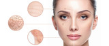 Fototapeta Tulipany - Female face close-up, showing skin problems. Dry skin, acne, wrinkles and other imperfections. Rejuvenation, hydration and skin treatment