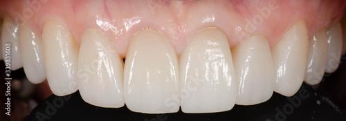 Carta da parati The straight and perfect teeth