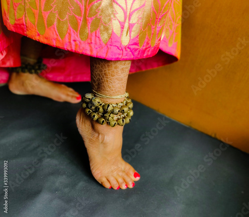 Photo feet of a woman with eczema skin disorder wearing anklets