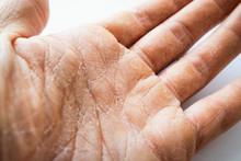 Dry Man Hand