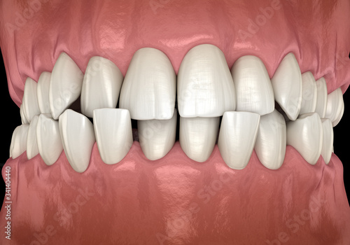 Anterior crossbite dental occlusion ( Malocclusion of teeth ) Wallpaper Mural