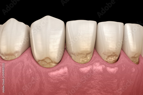 Abfraction of anterior teeth. Medically accurate 3D illustration Canvas Print