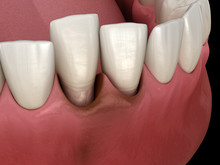 Tooth Dislocation After Trauma...