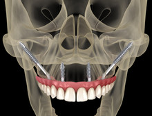 Maxillary Prosthesis Supported By Zygomatic Implants. Medically Accurate 3D Illustration Of Human Teeth And Dentures