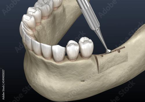 Photo Cleavage of the alveolar ridge, augmentation