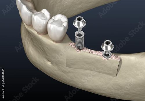 Fotografia Cleavage of the alveolar ridge : implantation