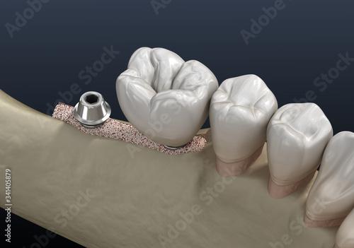 Cuadros en Lienzo Cleavage of the alveolar ridge : implantation