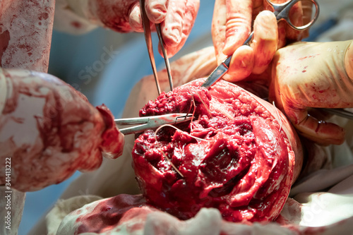 Photo Surgeon sews muscles and tissues of amputated leg during the surgery close-up
