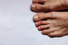 COVID Toes . Another Another Symptom Of Coronavirus Infection. Painful Red And Purple Bumps That Tend To Occur At The Tips Of The Toes Or On The Tops Of The Feet, Or On The Tops Of The Fingers.