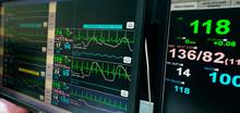 Heart Rate Monitor Measuring V...